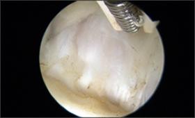 1-関節唇損傷部位